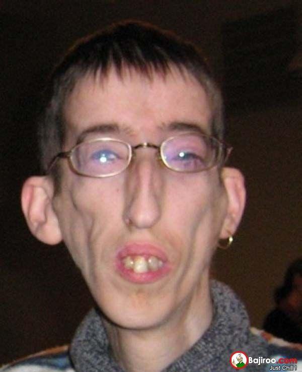 most ugly boy